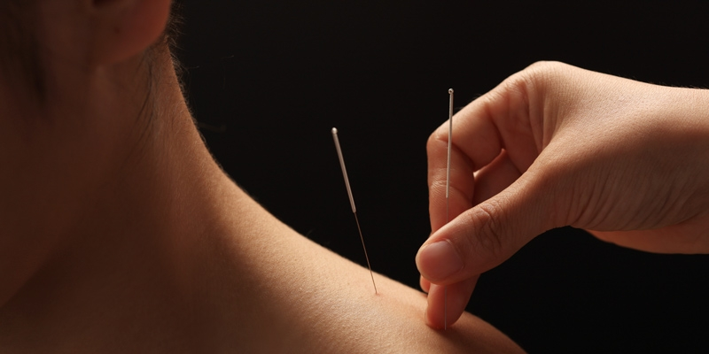 Dry Needling Bury St Edmunds Chiropractic Clinic